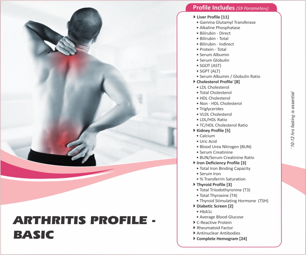 Thyrocare ARTHRITIS PROFILE - BASIC @Rs.1930 Only | 59 Tests | Thyrocare Packages